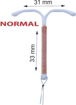 "IUD SMB TCu380Ag (""Nova T"" type) with copper and silver / ORDER WITH BIG DISCOUNT-look here /"
